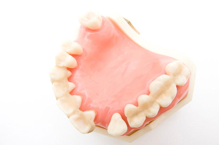 重度の歯周病になってしまった時には